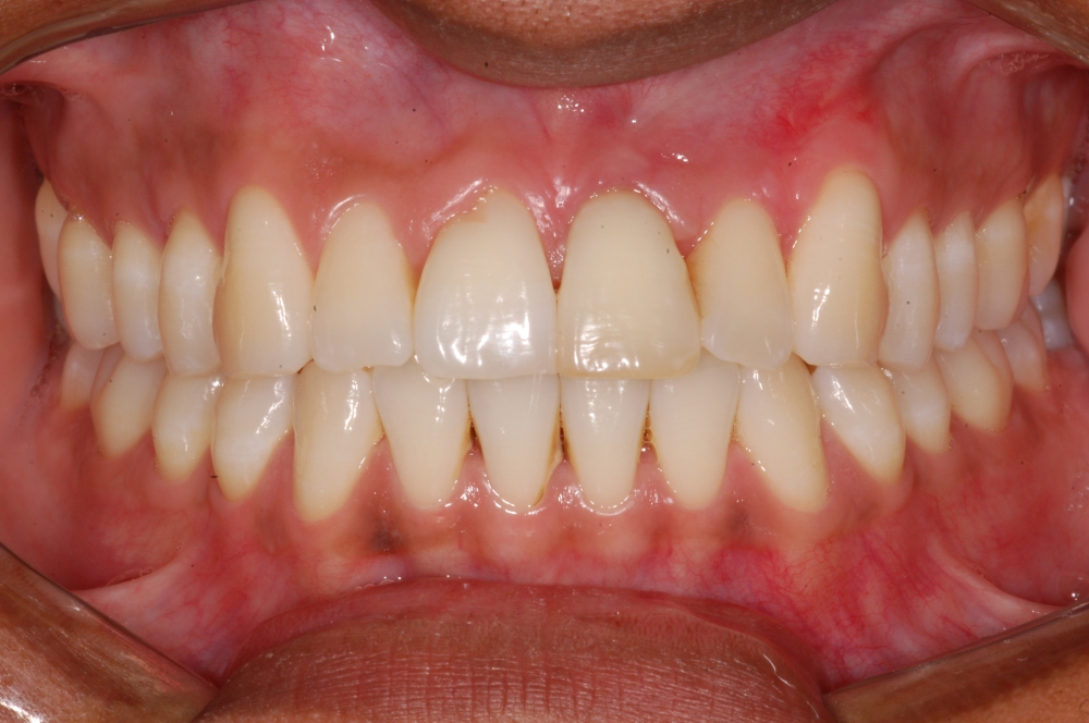 Imagem com Abertura do Diafragma f/22, observe que desde os incisivos centrais até aos molares estão nítidos.