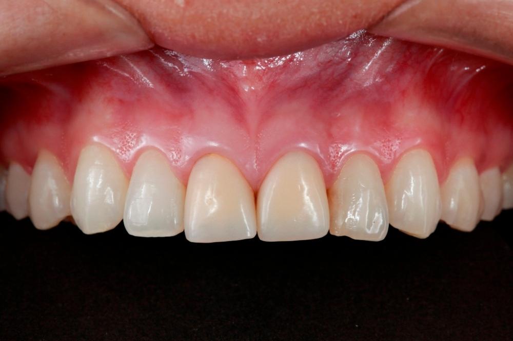 Perceba que os molares não estão com a mesma nitidez que os incisivos. Veja nas ampliações abaixo: